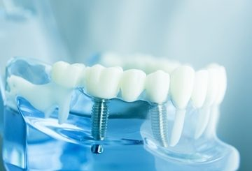 Stomatolog, dentysta – Pruszków – Risorius